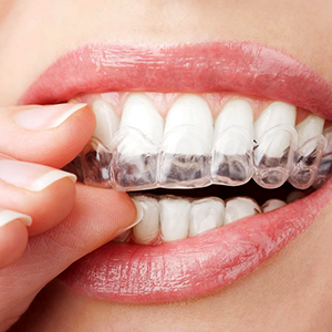 Clear aligners – Invisalign® and ClearCorrect™