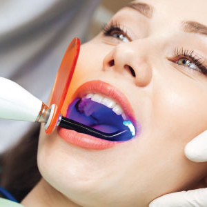 Laser Assisted Dental Fillings