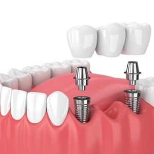 Single and multiple tooth implants