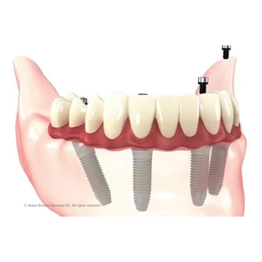 All-on-4® Implants